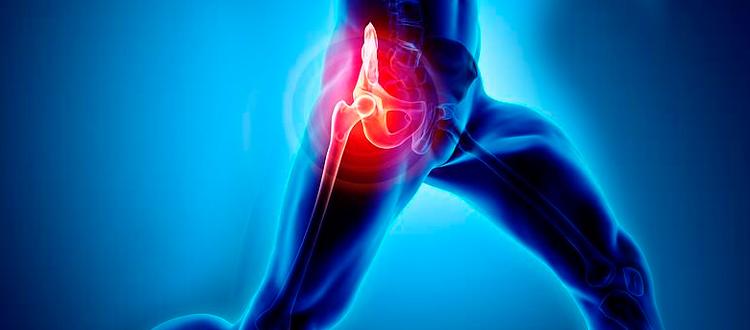 orthopedic vacations surgery cancun hip