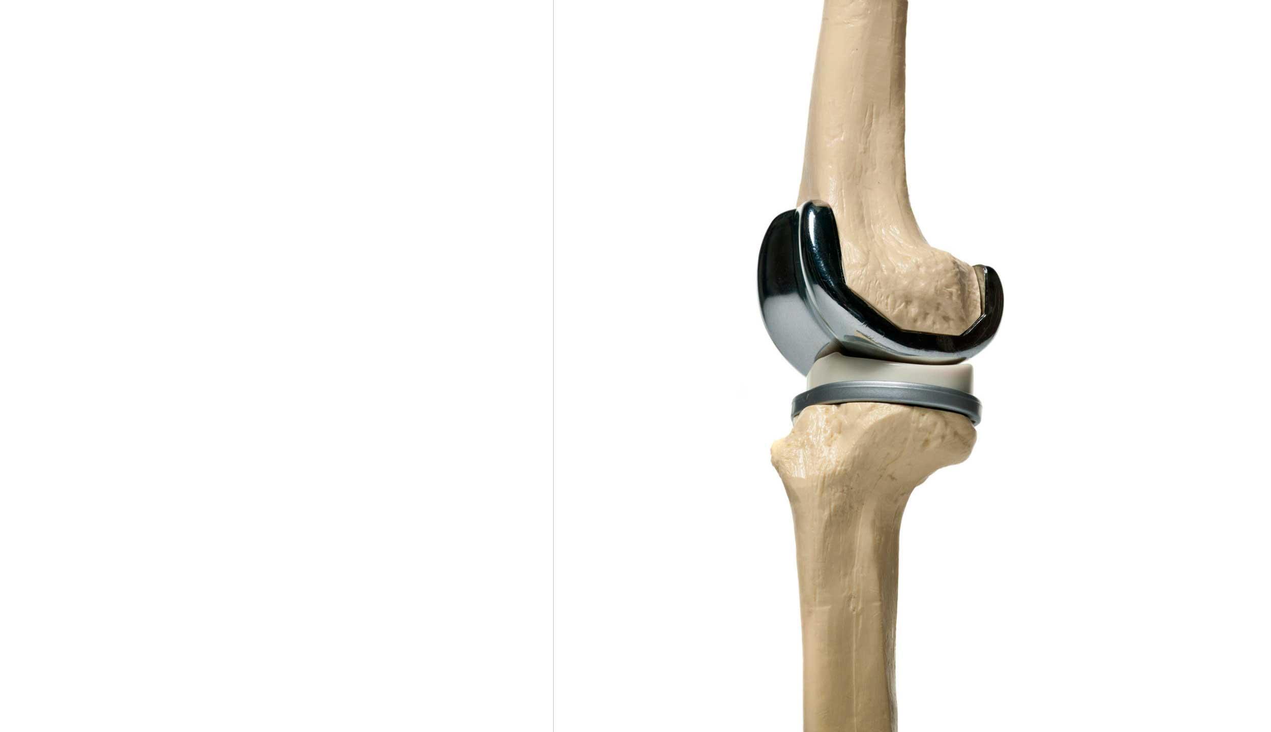 Rodilla protesis